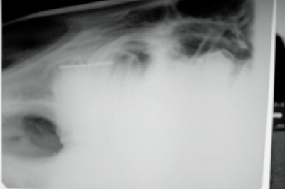 Side to side radiograph view